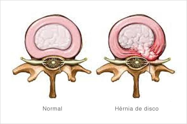 hernia-lombar-1