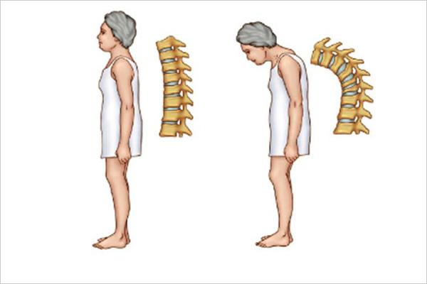 osteoporose-2
