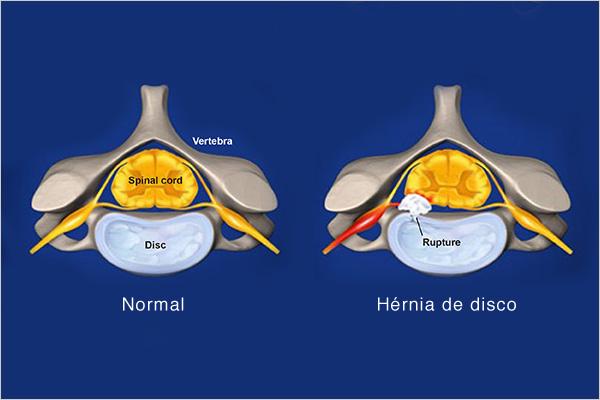 hernia-cervical-1