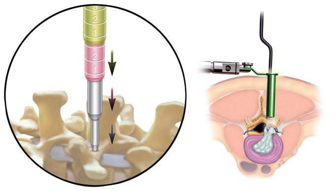 Cirurgia Cisto em Coluna