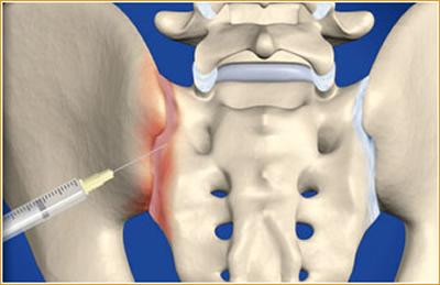 Bloqueio da articulação sacroilíaca