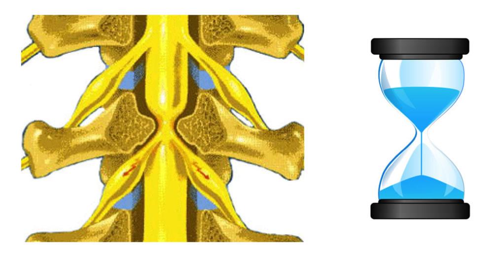 Estenose de canal lombar