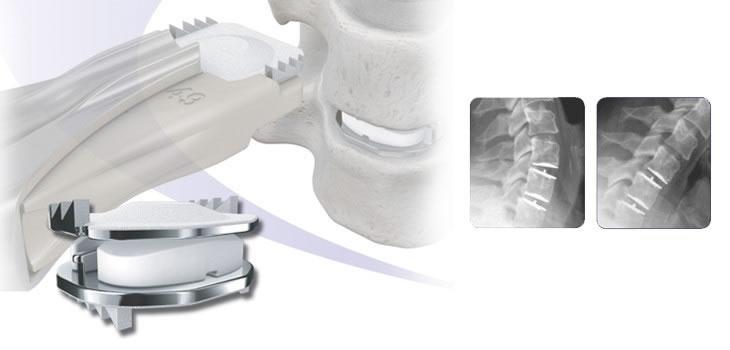 Artroplastia - Disco Artificial