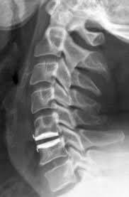 Artroplastia - Resultado