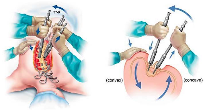 Cirurgia para Escoliose