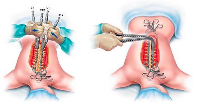 Final de Cirurgia para Escoliose