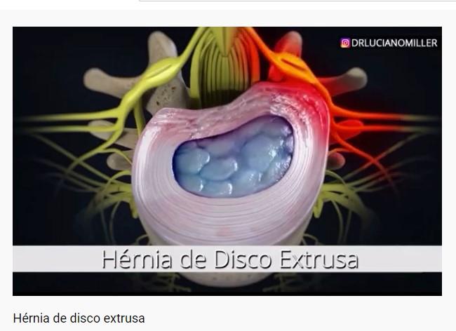 Hernia de disco extrusa